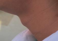 中学生喉结图片